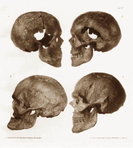 human skulls damage
